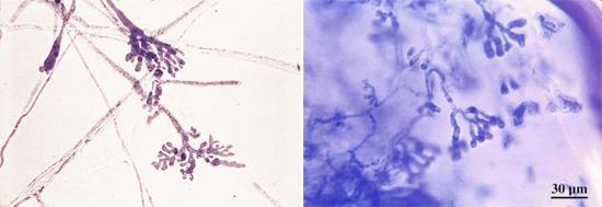 грибок возбудитель фавуса