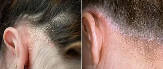 На фото заболевание кожи
