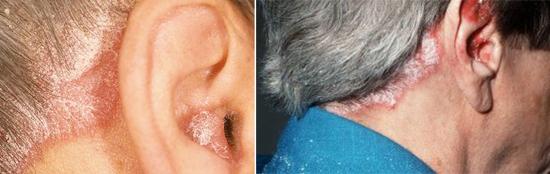себорейный дерматит области уха