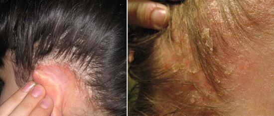 На фото сухая и жирная себорея кожи головы