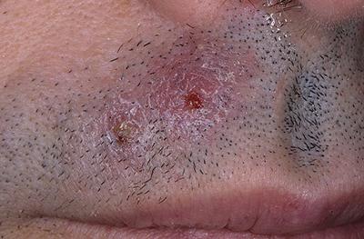 грибок кожи в области усов