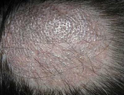 поражение кожи головы грибком трихофитон