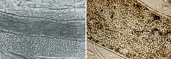 грибки трихофитон могут поражать как внешнюю, так и внутреннюю структуру волос