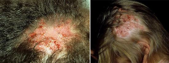 На фото тяжелое течение грибка головы