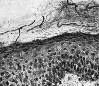 грибок на коже под микроскопом
