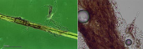 Грибок микроспорум в волосе