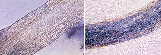 микроспорум в волосах
