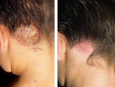 после лечение грибка на голове
