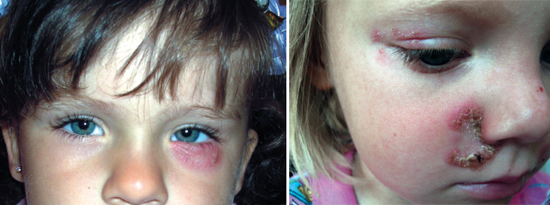грибок на коже лица у детей