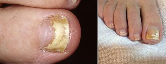 На фото разные формы грибка ногтей