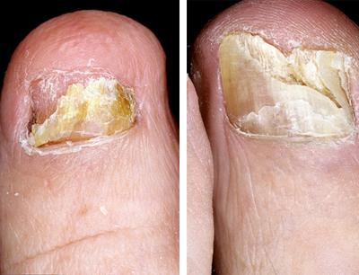 Дистрофическая форма грибка ногтей