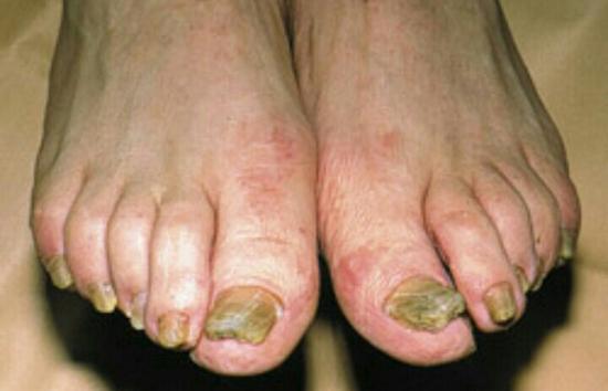 Гипертрофический тип грибка ногтей