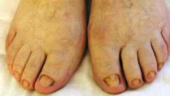 атрофический тип грибкового поражения ногтей