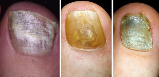 На фото изменение цвета ногтей при грибковом поражении