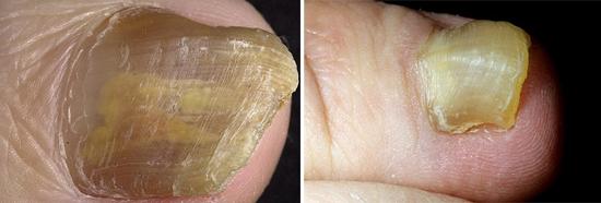 Изменение формы ногтей при онихомикозе