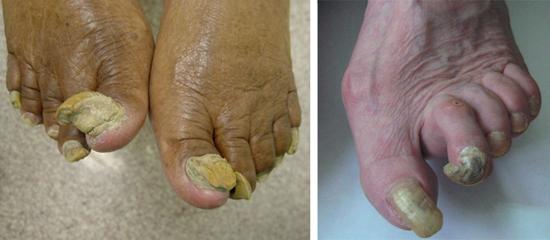 Онихомикоз у пожилых людей часто протекает с утолщением и деформацией ногтя