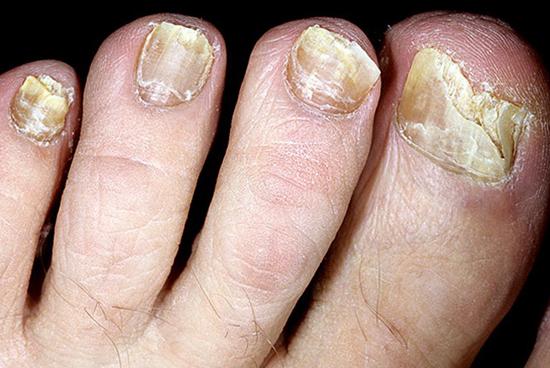 Деструкция ногтей при грибковом поражении