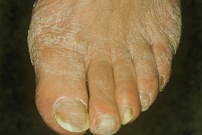 На фото поражение стоп и ногтей грибком трихофитон