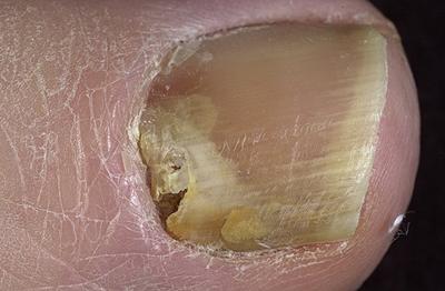 На фото грибковое поражение ногтя