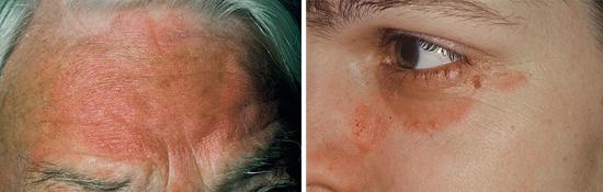 На фото рубромикоз на коже лица