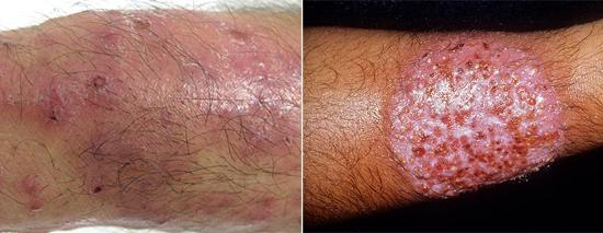 последствия грибкового поражения кожи