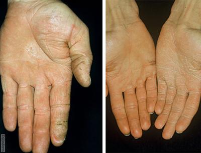 руброфития кистей рук