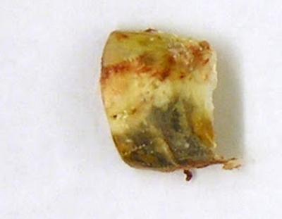 Поражение ногтя грибком трихофитон