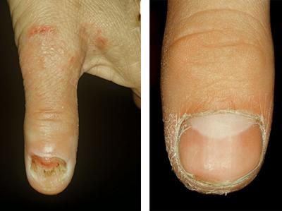 Поражение ногтей грибком трихофитон