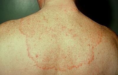 поражение кожи грибком тризофитон рубрум