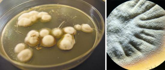 На фото грибок возбудитель трихофитии