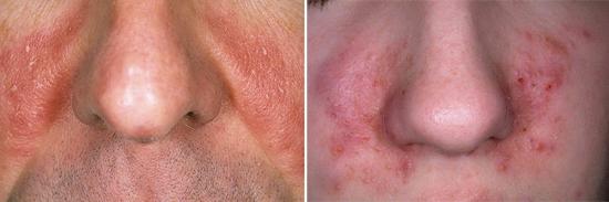 грибковое поражение кожи лица