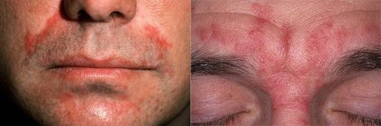 воспалительные процессы при грибковых заболеваниях кожи