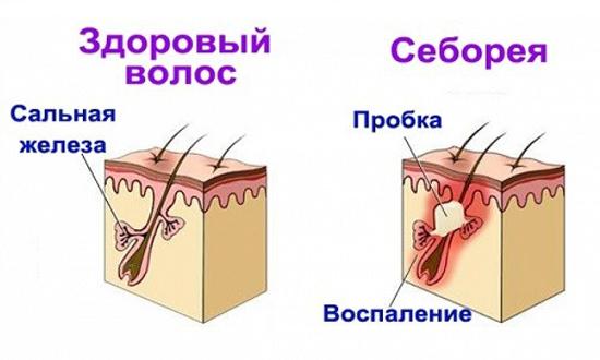 воспаление сальных желез при себорейном дерматите