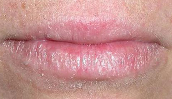 себорея на губах