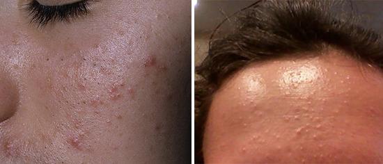 воспалительные процессы на коже лица