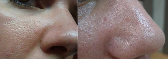 кожа на лице при себорейном дерматите