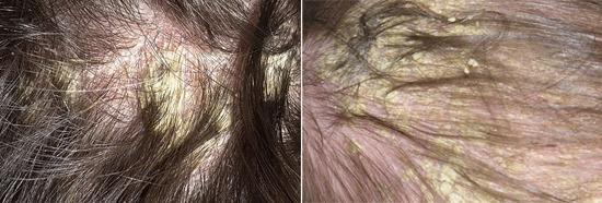 жирная себорея на коже головы