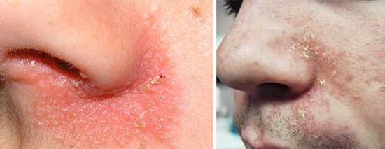 себорея на коже лица