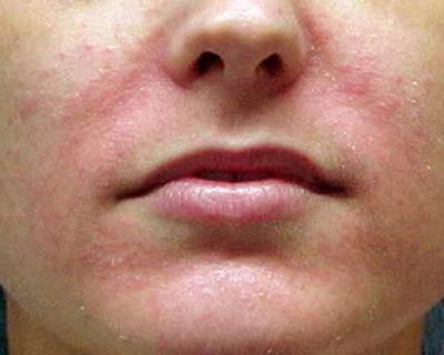 симптом себорейного дерматита
