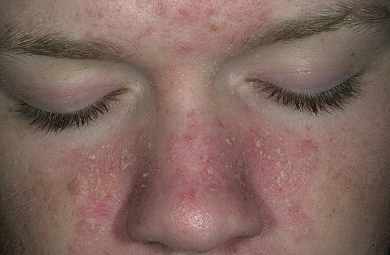 признак себорейного дерматита на лице