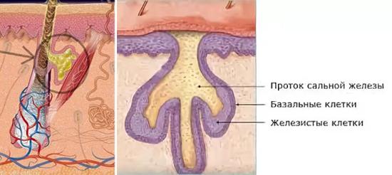 воспаление сальных желез