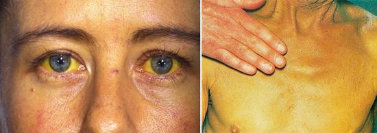 желтуха при гепатите B