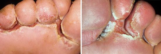 Симптомы грибка стопы
