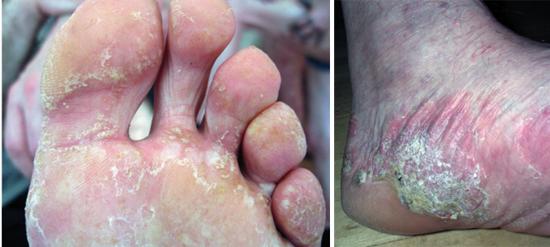 На фото грибок на ногах