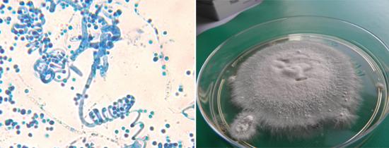 грибок под микроскопом