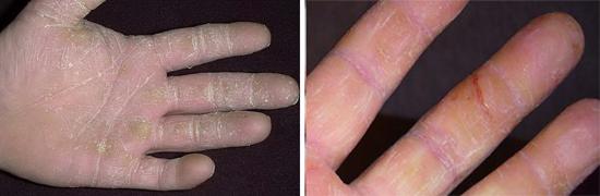 грибковое поражение кожи рук