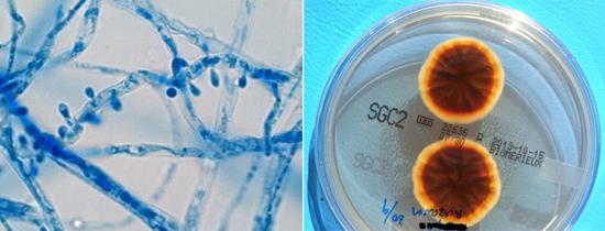 патогенные грибки
