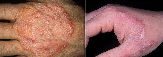 воспаление при грибке кожи рук