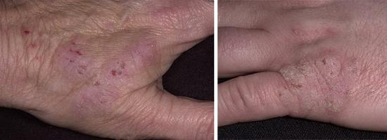 На фото кожные болезни