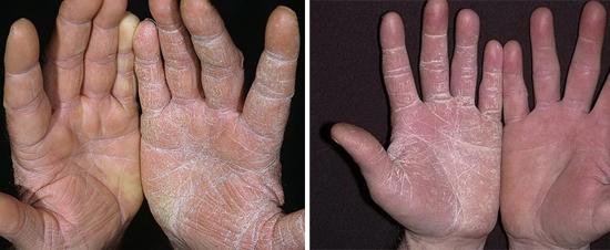 На фото грибок на коже рук